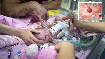 World first for baby born with heart OUTSIDE her body