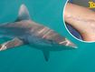 Parents face worst nightmare when 10-year-old is attacked by shark