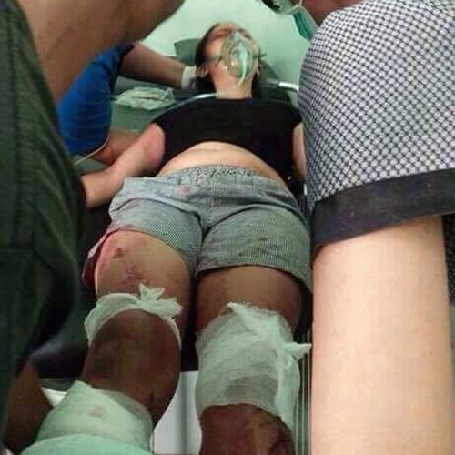 Putu's left leg had to be amputated below the knee, but medics managed to save her right foot.