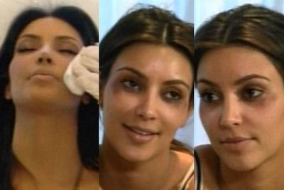 Kim was left with black eyes after she reacted badly to Botox injections.