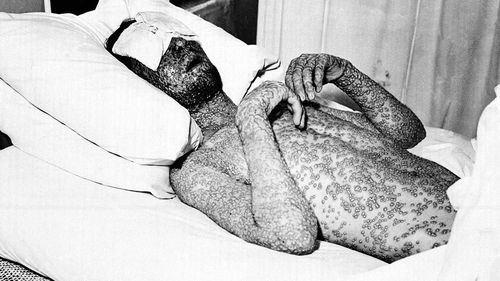 """A man, who has contracted small pox, is shown with a formation of scar-producing pustules on his body on Nov. 1, 1941. The New York State Board of Health anti-disease campaign used this image in 1941 to encourage the public to vaccinate in New York and other states with the caption, """"This man was never vaccinated against smallpox."""" (AAP)"""