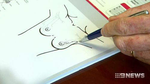One in eight Australians will develop breast cancer and those with small tumours are the focus of the trial. (9NEWS)