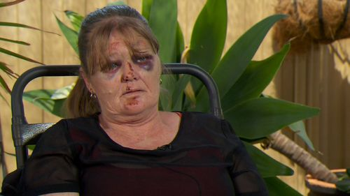 The victim was left with two black eyes and bruises over her entire body.