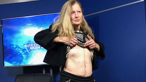 Glenroy woman Leonie Stuart shows off her scars after being shot at her home.