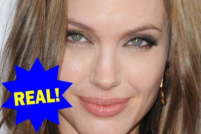 Angelina Jolie has had those massive lips her whole life, so unless she started getting fillers as an infant, that pout is all real!