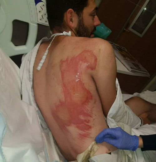 Mr Cotter's badly grazed back. Picture: 9NEWS