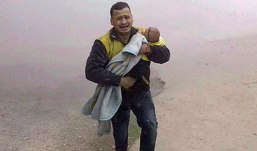 A volunteer White Helmet carries his injured son after the air strikes in rebel-held Damascus suburb. (AP).