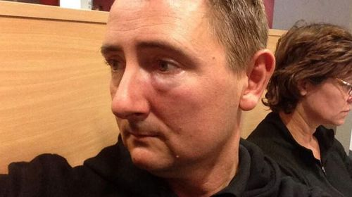 "Cameraman Andrew Foote posted a photo of his swollen cheek with the caption, ""Currently in hospital getting checked after being struck while covering courts. Thank you for all the well wishes."" (Supplied)"