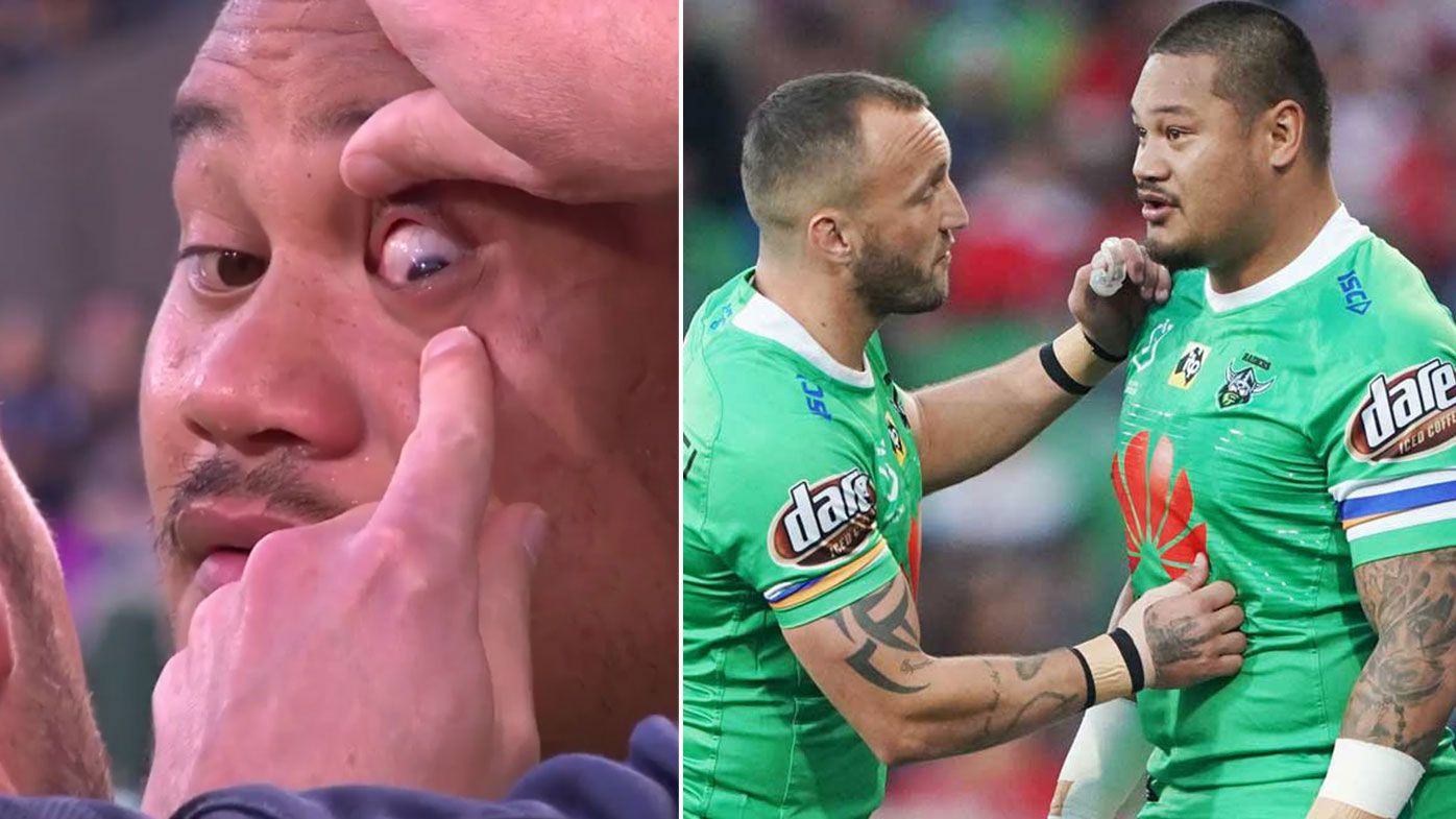Joseph Leilua was treated for a firework spark in his eye before kick-off against the Storm
