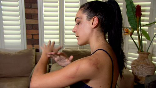 Nikki says she was king-hit and kicked on the ground while unconscious.