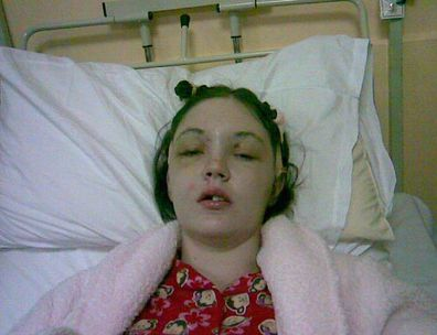 Woman who lost forehead in car crash shares warning