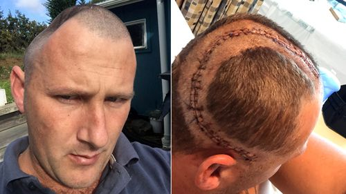 Benjamin Lightbody has endured five operations to replace a large piece of his skull with an implant. Because of the implant's size, he has suffered a variety of complications and ongoing pain. (Supplied)