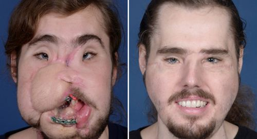The time between injury and face transplant was 18 months, the shortest period between the two in US face transplant history.