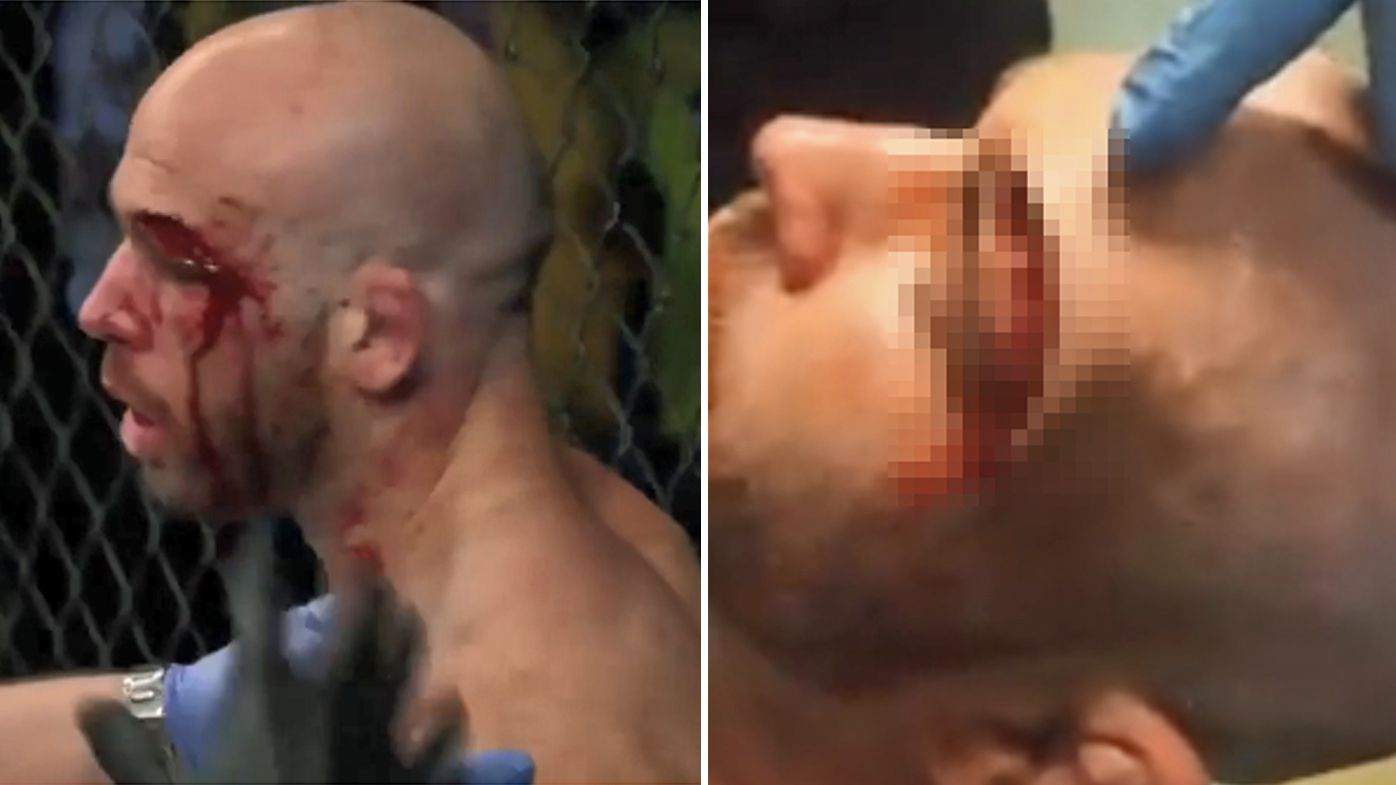 MMA fighter suffers gruesome head cut at Cage Warriors 93