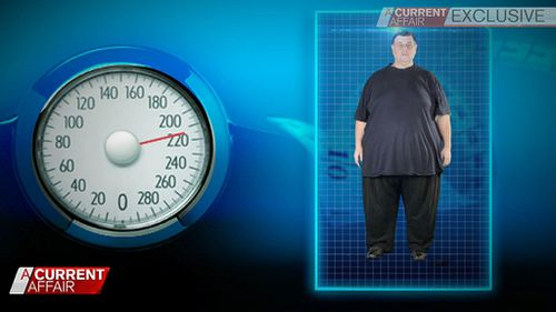 Jordan Tirekidis weighed in at a whopping 310kg but has lost an amazing 100kg. (9NEWS)