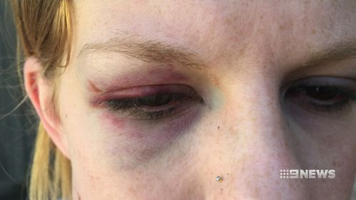 Maddi, 27, was punched in the face by an unknown man, before being pepper sprayed by police. (9NEWS)