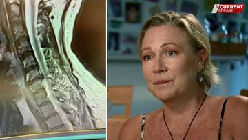 Mum left in agony after shocking airbag accident