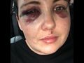Mother of woman in club bashing seeks attacker