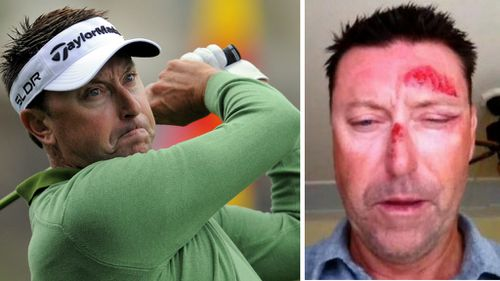 Allenby admits memory of Hawaii abduction muddled by concussion