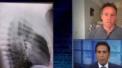 Chris Cuomo shares shot of chest X-Ray