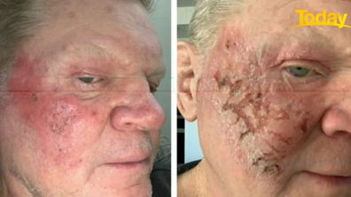 Paul 'Fatty' Vautin was able to treat his skin cancer with non-invasive treatment, described as 'chemotherapy in a tube'.