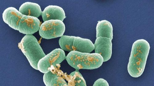 Listeria is a nasty bacteria which is particularly hard to kill.