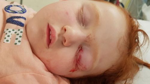 Melbourne toddler Katie was two when she fell onto a metal prong in a Target store.