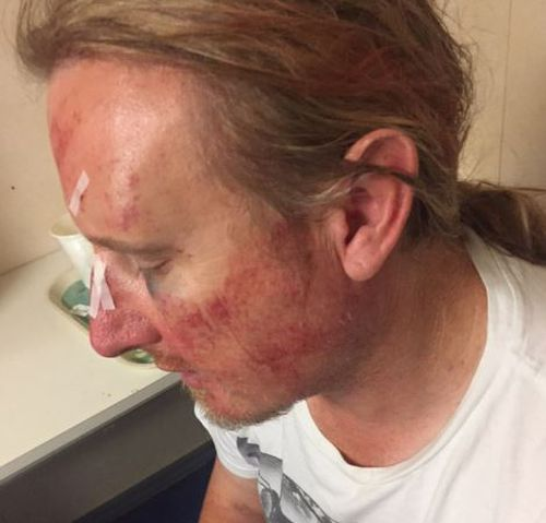 Anthony Titlow was left with multiple facial fractures after the brawl broke out. (Supplied)