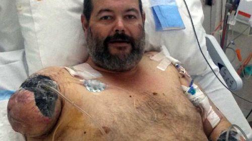 "Brendan ""Bear"" Clark lost his right arm in the dog attack."