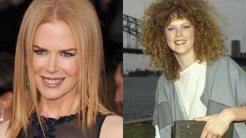 Nicole Kidman admits she's 'unfortunately' used botox