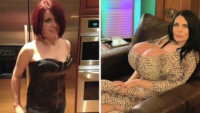 Foxy before and after implants on Botched