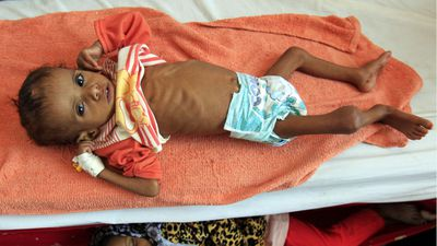 Twelve million facing starvation in Yemen