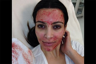 We didn't think it was possible to be any more shocked by what Kim K uploads to Instagram, but she sure proved us wrong when she decided to share this horrifying photo of herself after a blood facial — yuck! <br/><br/><i>Image: Instagram @kimkardashian</i>