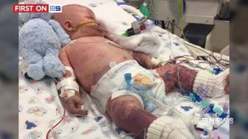 VIDEO: Baby battling deadly meningococcal disease