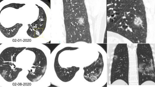Chest CT scans of a 34-year-old man with coronavirus in China.