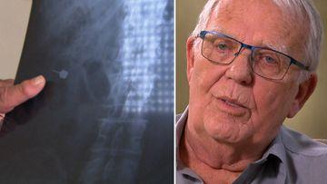 Grandad's $20k bill after swallowing dentist's screwdriver