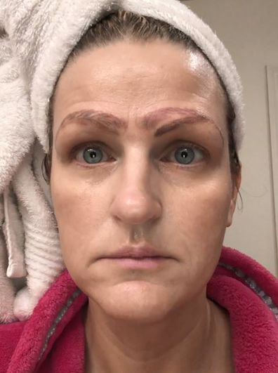 Woman with no eyebrows