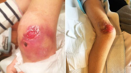 Ella's knee pictured before surgery and one month ago.