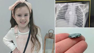 Button battery 5 year old girl