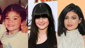 The evolution of Kylie Jenner's face