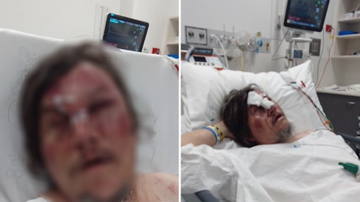 Unprovoked attack in south-east Victoria leaves man with serious injuries