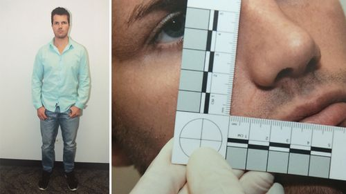 An image of a photograph tendered to court Wednesday, Oct. 13, 2016 of Gable Tostee's injuries take by police on August 8, 2014.
