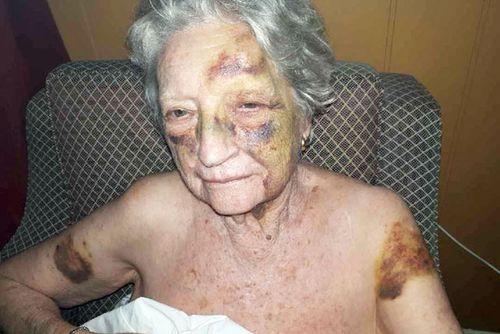 Margaret Heffernan's family believe she was assaulted in her Sydney nursing home.