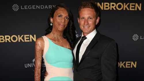 Turia Pitt engaged to long-term boyfriend