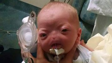 Baby Eli Thompson was born with congenital arhinia which affects one in 197 million people. (Facebook)
