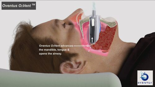 The device allows sleep apnoea sufferers to receive low-pressure airflow without facemasks.