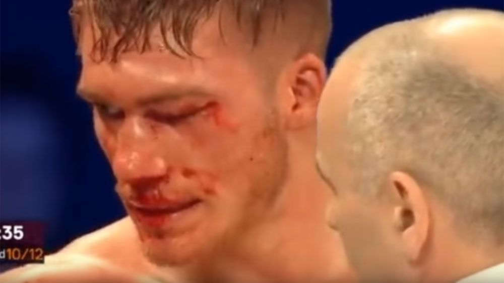 UK boxer Blackwell in coma after loss