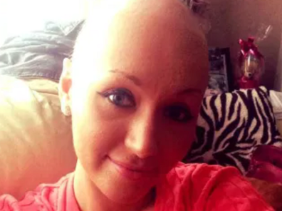 Young woman Emma UK dies cervical cancer refused pap test