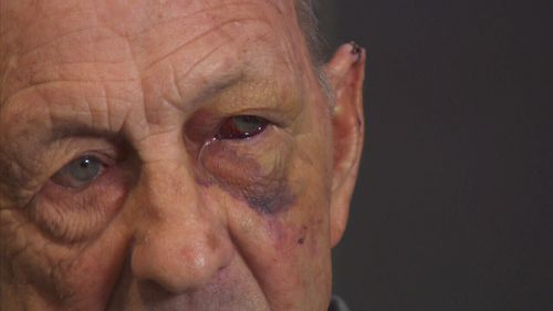 Brian received a fractured skull in the assault.