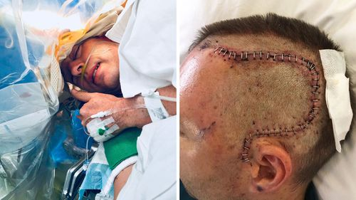 Mr Stephens' brain was operated on while he was awake at Sir Charles Gairdner Hospital.